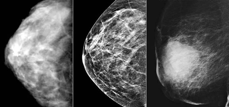 признаки рака груди