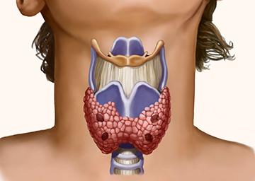 резекция щитовидки