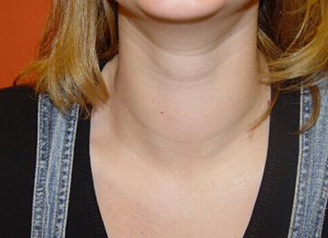 увеличенная щитовидка