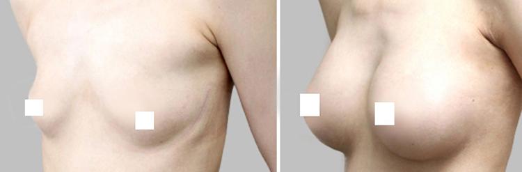 импланты в груди