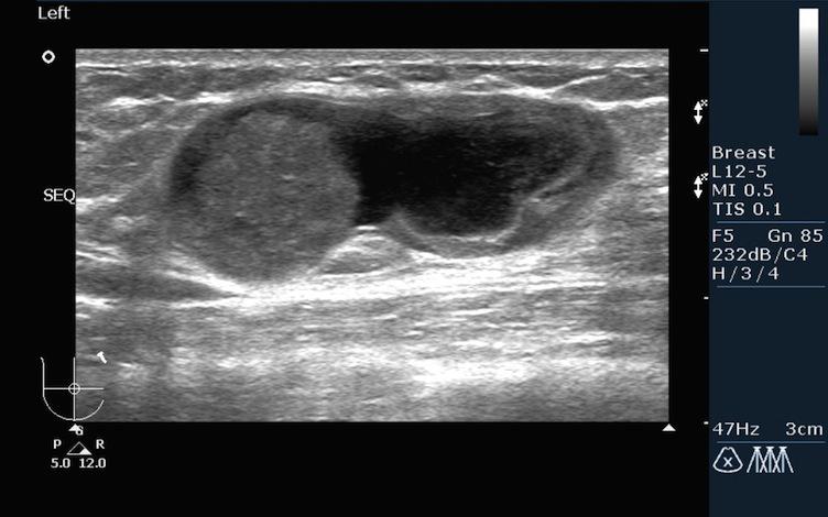 рак молочных желез на узи