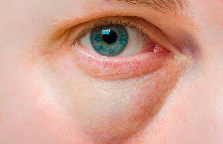 глазной отек