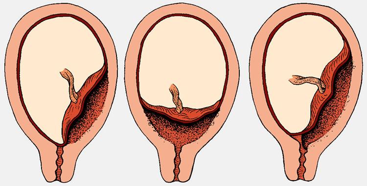 варианты предлежания плаценты
