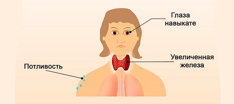 гиперфункция щитовидки