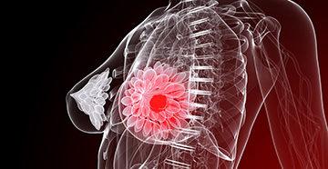 болезни груди - предрак