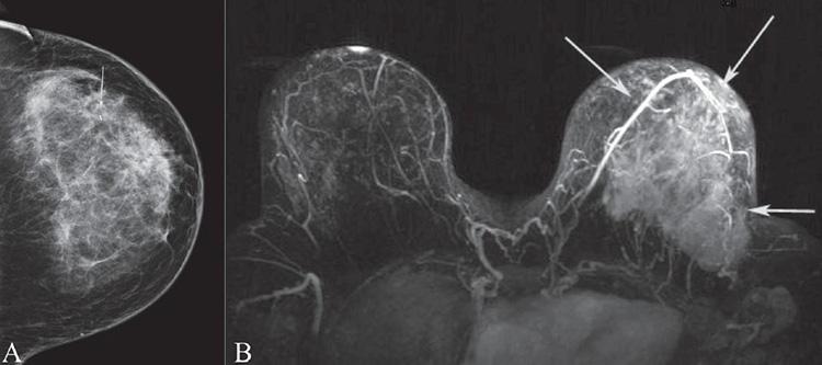 мрт - опухоль молочной железы